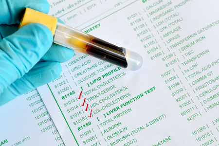 Lipid testing