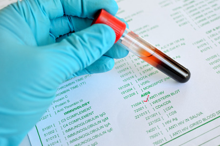 hiv aids: Blood sample for HIV testing
