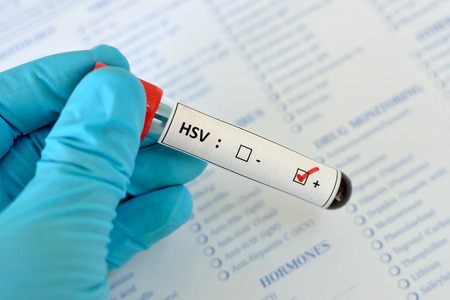 sexually transmitted disease: Herpes virus HSV positive