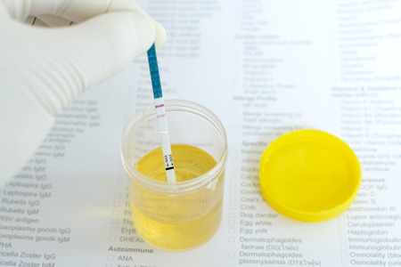 test de grossesse: Test de grossesse urinaire positif