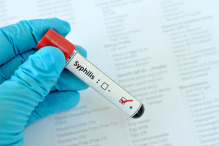 sexually transmitted disease: Syphilis positive