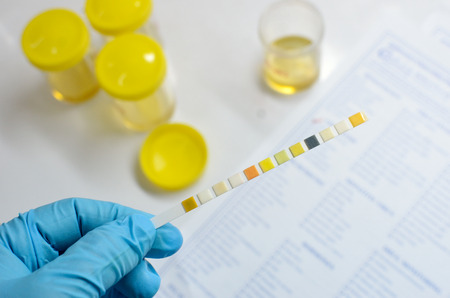 urine analysis: Urine analysis