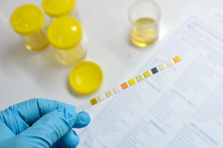 urinalysis: Urine analysis