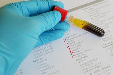 kinase: Cardiac marker testing