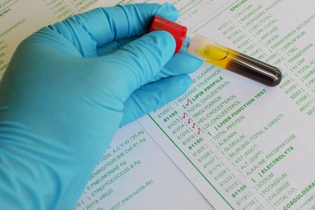 lipid: Lipid profile testing