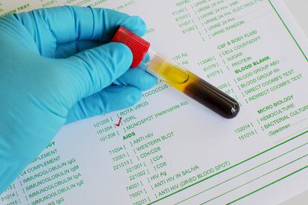syphilis: VDRL testing Stock Photo