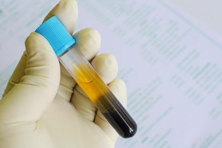Blood sample for coagulation testing Stock Photo