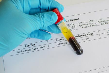 blood sugar: High blood sugar Stock Photo