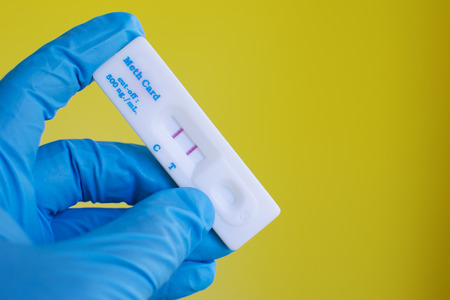 urinalysis: Urina metamfetamina negativo Archivio Fotografico