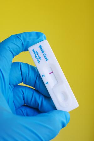 urinalysis: Urine methamphetamine positive