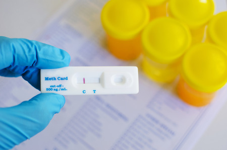 methamphetamine: Urine methamphetamine positive