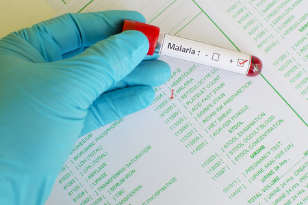 malaria: Malaria positive Stock Photo