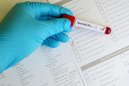 h5n1: Spanish Flu positive