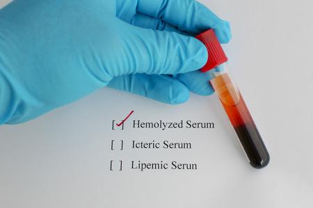 Hemolyzed blood sample