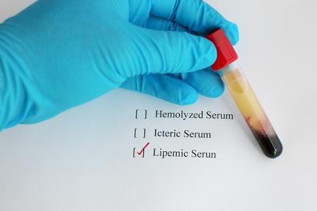 sample: Lipemic blood sample Stock Photo
