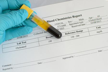 lipoprotein: Cholesterol result: Normal