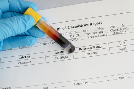 lipoprotein: High cholesterol result