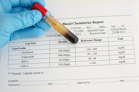 blood clot: High lipid profile result Stock Photo