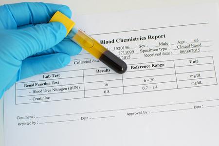 test result: Renal function test result: Normal