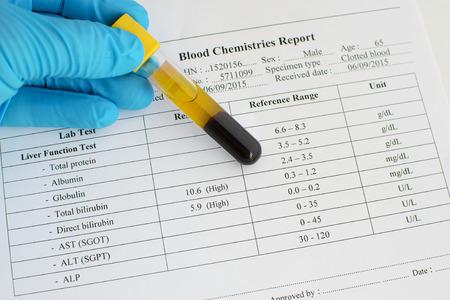 albumin: High bilirubin result