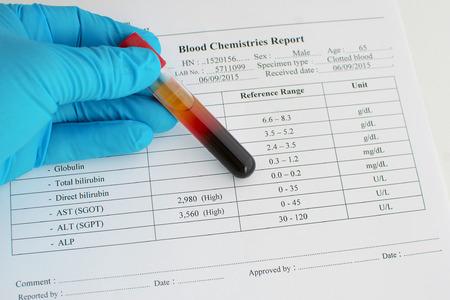 albumin: High liver enzyme result