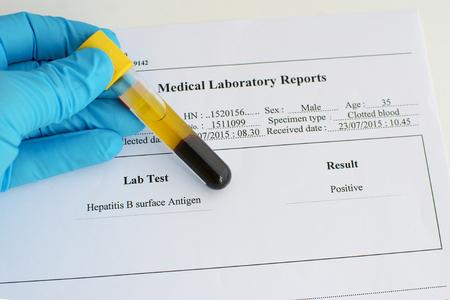 hepatitis: Positive hepatitis B result