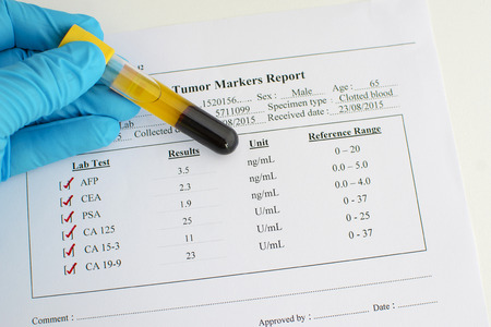 Tumor markers result