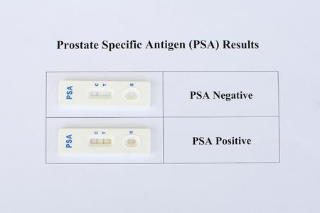 hematology: PSA testing results