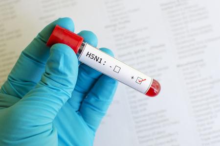 h5n1: H5N1 Influenza positive