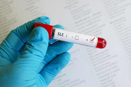 erythematosus: SLE positive