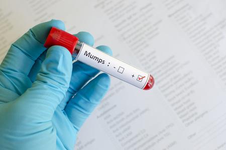 mumps: Mumps positive