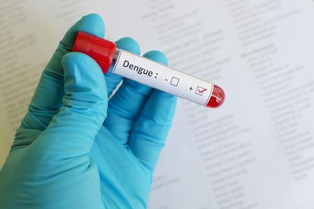 Dengue positive Stock Photo