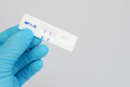 sexually transmitted disease: HIV positive Stock Photo