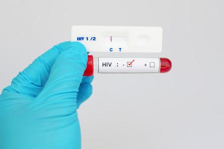 micro organism: HIV negative