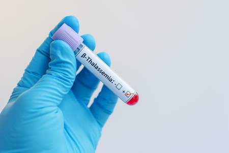 thalassemia: Beta thalassemia blood sample Stock Photo