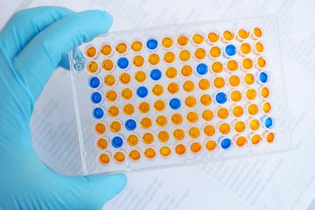 assay: Enzyme-linked immunosorbent assay ELISA, Immunology testing method in laboratory Stock Photo