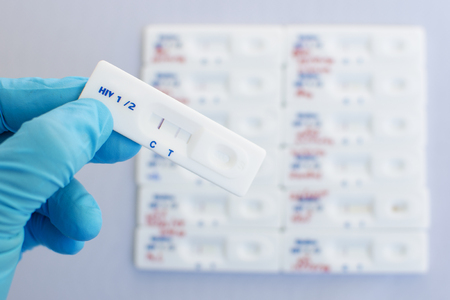 sexually transmitted disease: HIV testing positive