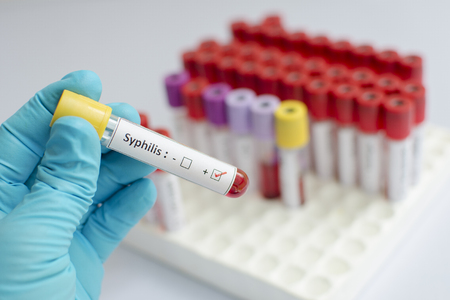 blood sample: Syphilis blood sample Stock Photo