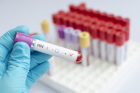 virus organism: HIV blood sample