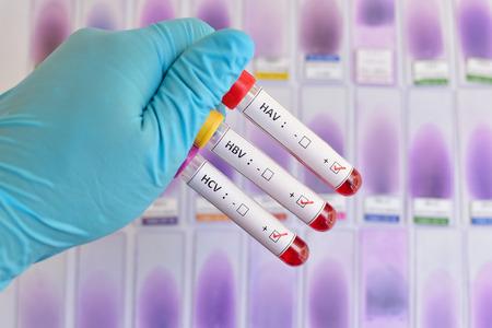 肝炎ウイルス