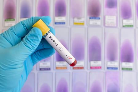 rabies: Rabies blood sample