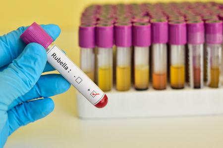 rubella: Rubella positive blood sample Stock Photo