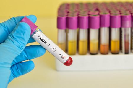 plaga: Plaga muestra de sangre positiva