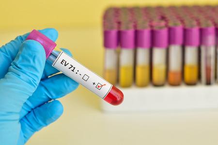 mouth: Enterovirus 71 EV 71 positive blood sample