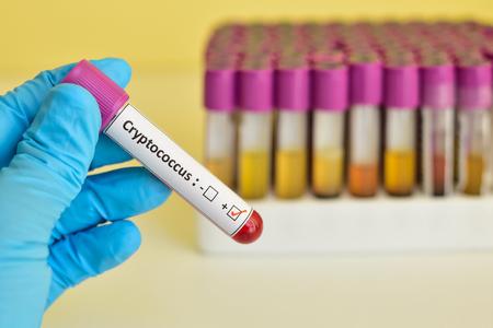 micro organism: Cryptococcus positive blood sample Stock Photo