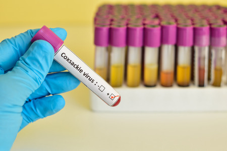 Coxsackie virus blood sample