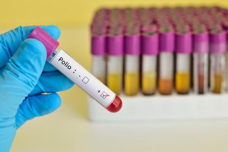Polio positive Blutprobe Standard-Bild