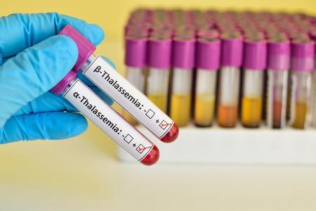 thalassemia: Beta and alpha thalassemia blood sample