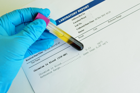 toxicology: Blood sample with chromium testing result Stock Photo