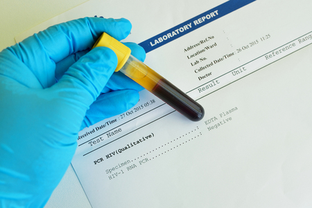 pcr: HIV PCR result Stock Photo